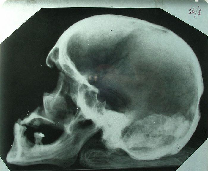 Рентгеновский снимок черепа № 4